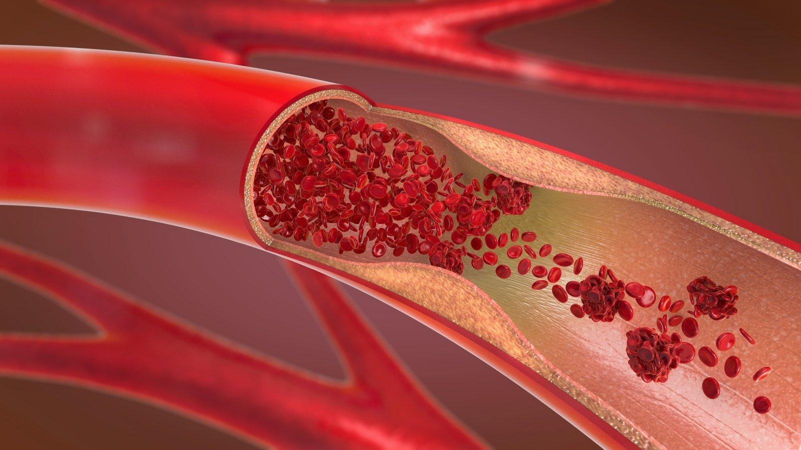 mažesnė kraujospūdžio hipertenzija hipertenzijos po išeminio insulto gydymas