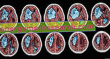 Karuselės sindromas: galvos svaigimas dėl kraujo spaudimo - Insultas -