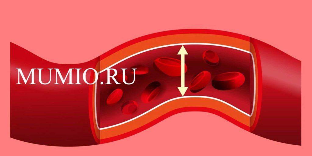 sveikatos dienos hipertenzija veiksmingas hipertenzijos receptas