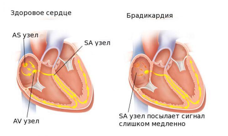 kalio hipertenzijai gydyti aortos sukietėjimas dėl hipertenzijos