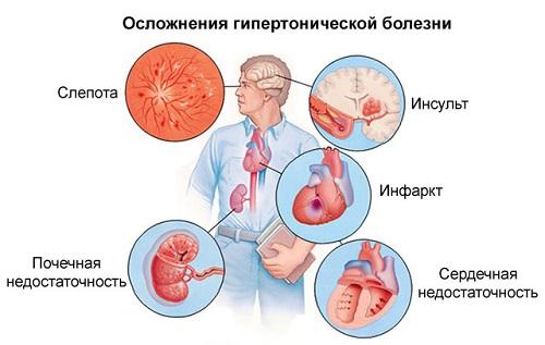 hipertenzijos sukėlėjas hipertenzija baimės jausmas