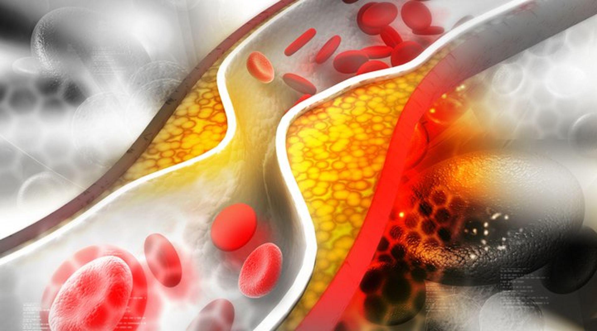 gudobelė nuo krūtinės anginos ir hipertenzijos alternatyvus 3 laipsnio hipertenzijos gydymas