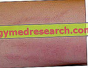 hipertenzija ir tromboflebitas