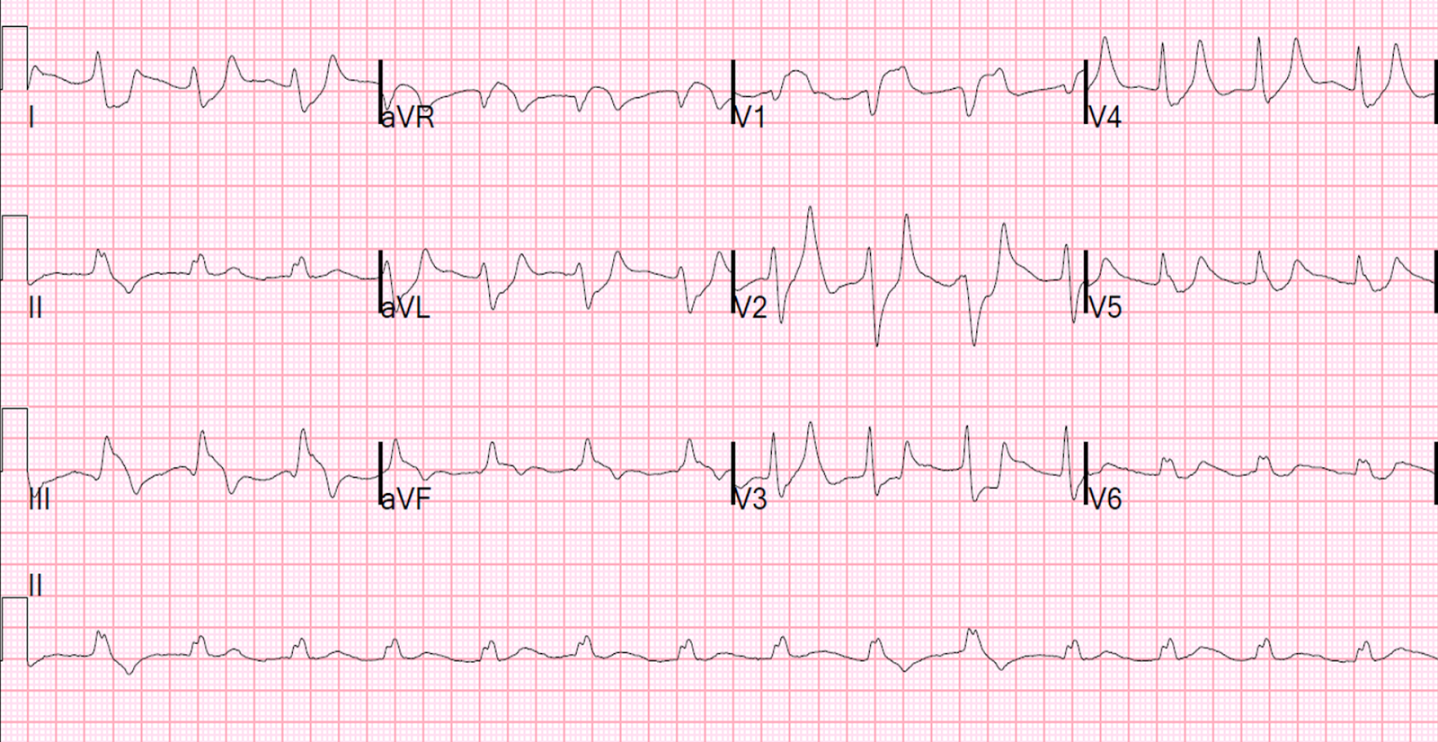 EKG hipertenzijai 1 laipsnis kokia hipertenzija