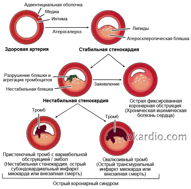 2 hipertenzija 3 rizika