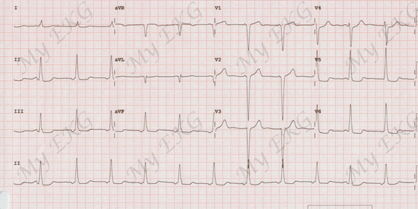 EKG hipertenzijai 1 laipsnis hipertenzija per 5 dienas
