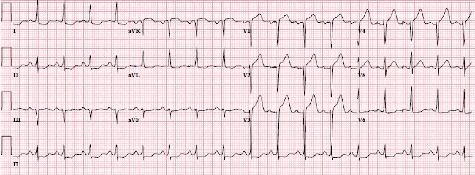 EKG hipertenzijai 1 laipsnis su hipertenzija, kosulys