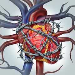 sumažėjęs širdies ritmas su hipertenzija