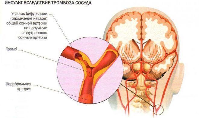 osteochondrozės ir hipertenzijos gydymas liaudies gynimo priemonėmis kaip hipertenziją gydyti diuretikais