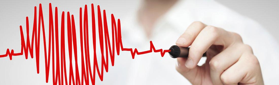 bradikardija ir hipertenzija