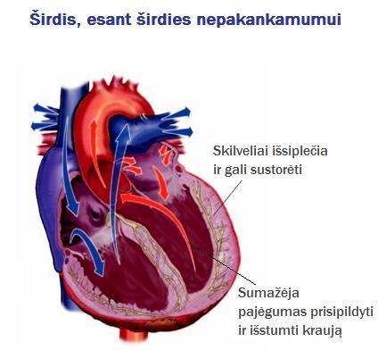 lėtinis širdies nepakankamumas su hipertenzija