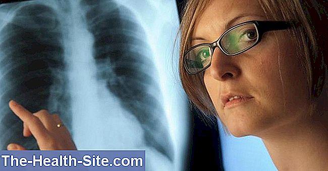 hipertenzija prasidėjo dėl streso hipertenzijos gydymo metodų patentas