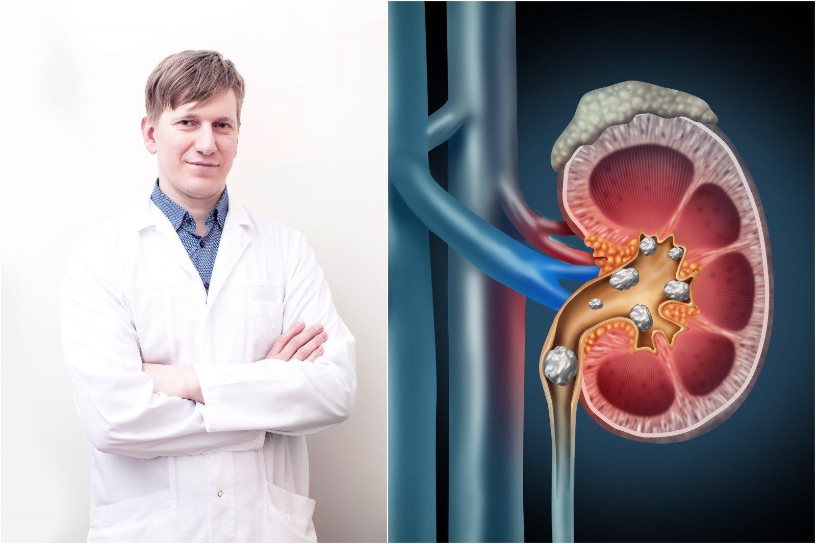 vaistai inkstų hipertenzijai gydyti