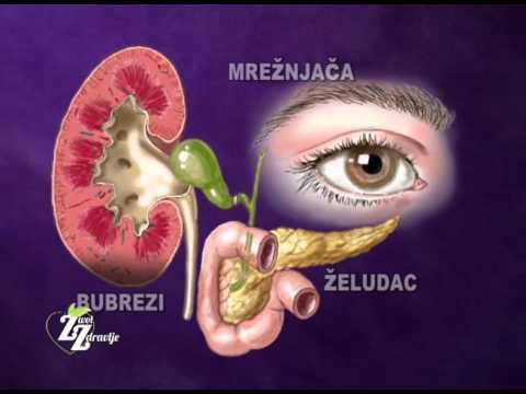 magnio sulfatas vaikams, sergantiems hipertenzija