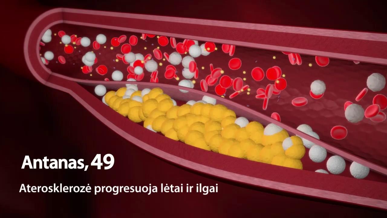 kaip progresuoja hipertenzija kraujospūdis pagal amžių