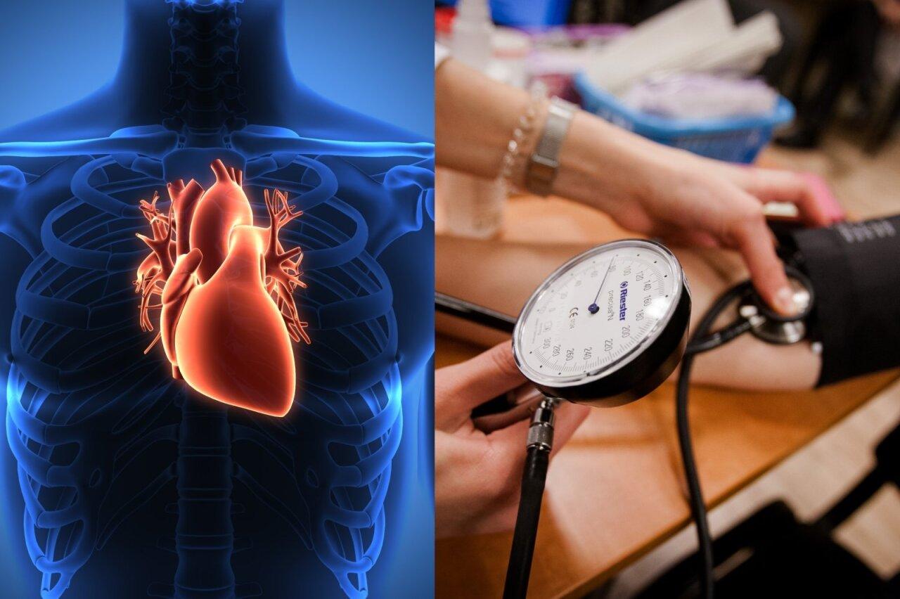 hipertenzija blogos kraujagyslės ką daryti širdies sveikatos dietos