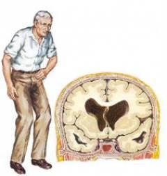 neuroksas ir hipertenzija bradiaritmija ir hipertenzija