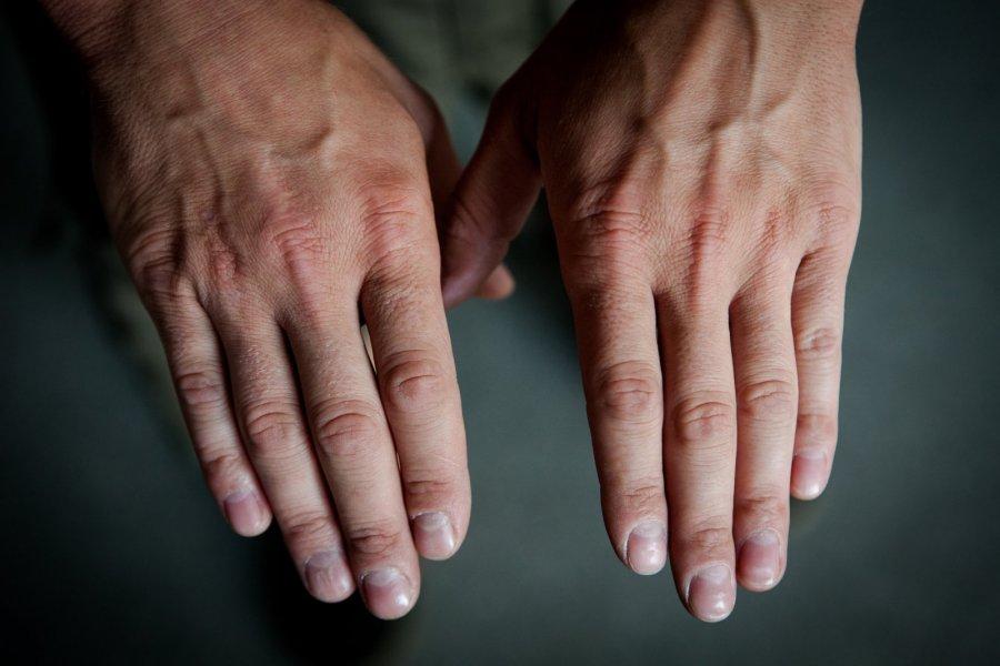 rankos dreba nuo hipertenzijos