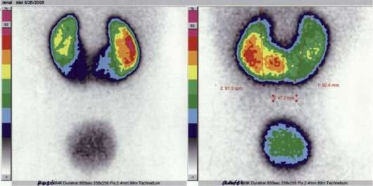 hipertenzijos diagnozė hlzh hipertenzija skausmas širdis