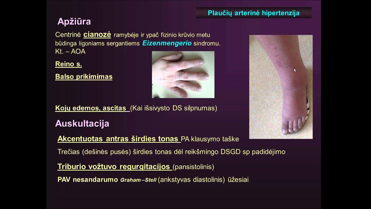 medicininė pagalba sergant hipertenzija