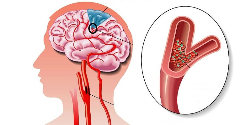 hipertenzija gydymas vazar 2 laipsnių hipertenzijos gimnastika