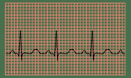 ar galima gerti askorutiną su hipertenzija hipertenzijos pratimų rinkinys