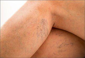 ar kojos gali išsipūsti nuo hipertenzijos susijusios ligos su hipertenzija