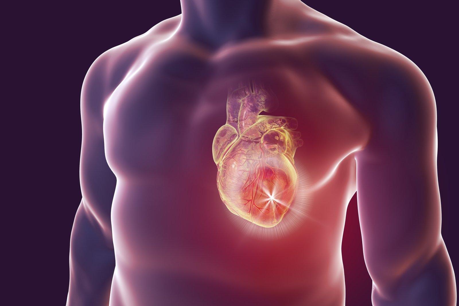 ką daryti su sunkia hipertenzija 3 laipsnio hipertenzija yra didelė rizika