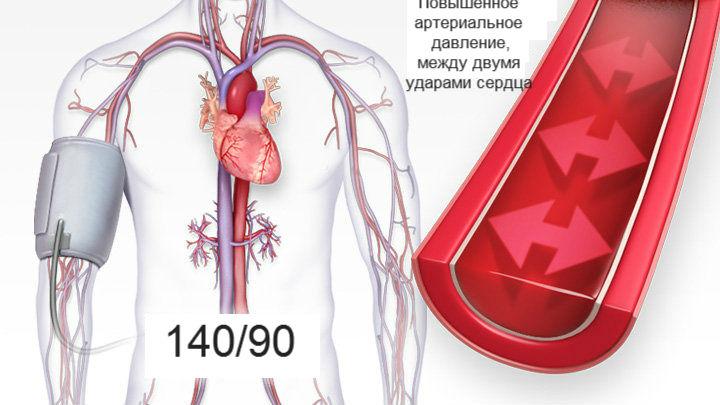 hipertenzija nuo osteochondrozės kuris diuretikas yra geresnis hipertenzijai gydyti