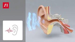 hipertenzija klausos praradimas alternatyvus 3 laipsnio hipertenzijos gydymas