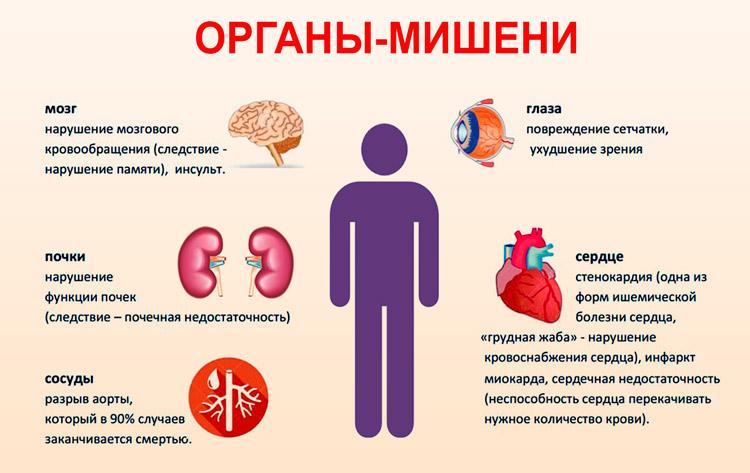 Hipertenzinės krizės ir būklės diagnostika bei gydymas | e-medicina