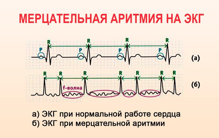 kaip atsikratyti hipertenzijos naudojant liaudies gynimo priemones