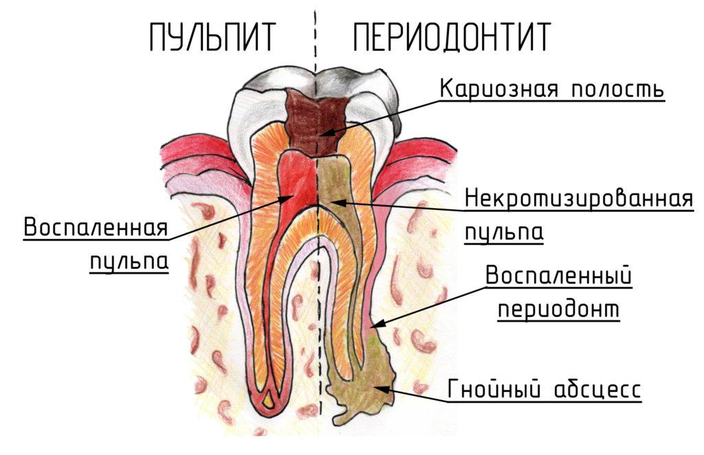 ketonalinis nuo hipertenzijos