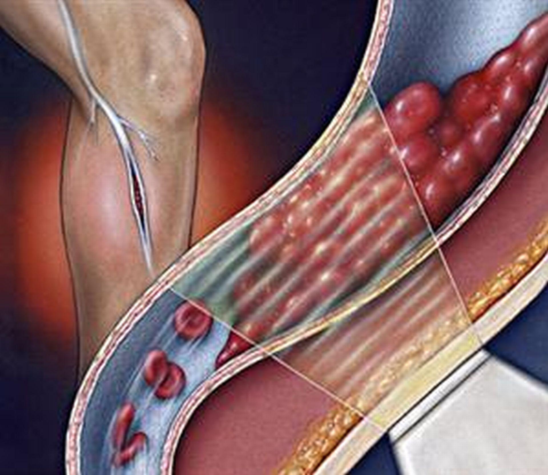 kojų patinimas gydant hipertenziją grynas oras sergant hipertenzija