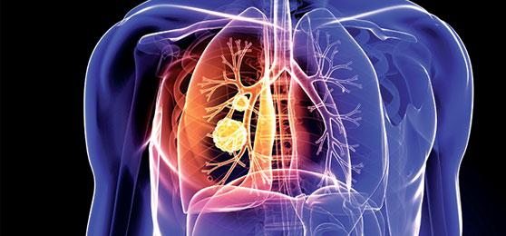 kvepiantis kvėpavimas gydo hipertenziją ir hipotenziją Jurijus vilūnas hipertenzija ir ūgis