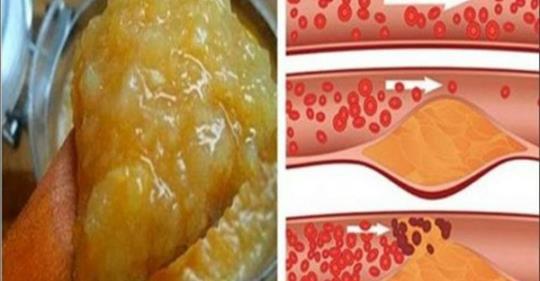 maistas ir hipertenzijos receptai