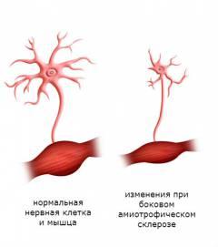 neuroksas ir hipertenzija gleivinės su hipertenzija