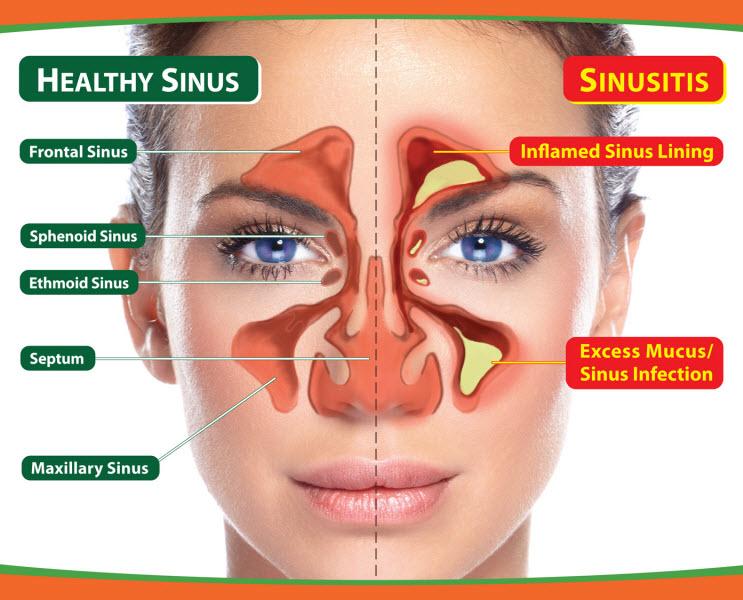 priekinis sinusitas ir hipertenzija