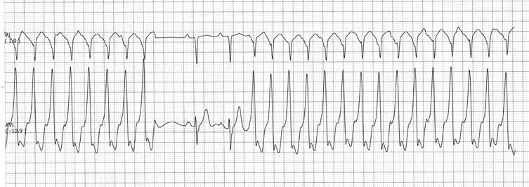 2 laipsnio hipertenzija 3 pakopos rizika 1 omega 3 riebalai ir širdies sveikata