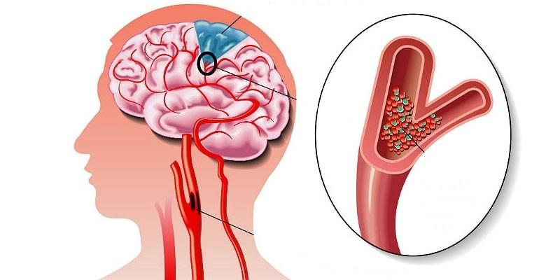 smegenų edema su hipertenzija