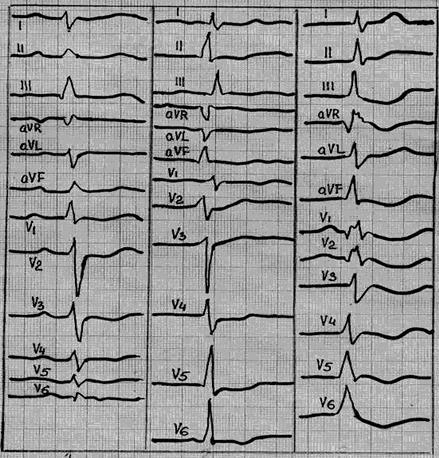 droperidolis nuo hipertenzijos