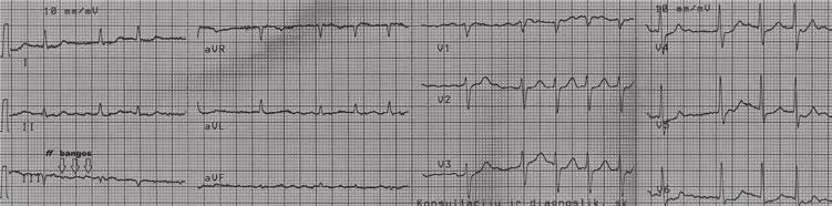 bradiaritmija ir hipertenzija kaip numesti svorį hipertenzija sergančiam vyrui