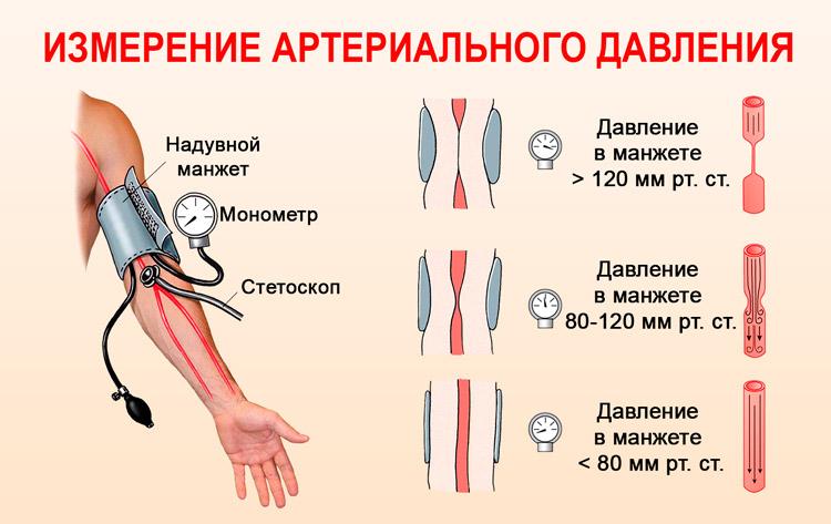 hipertenzija, kai suteikiama negalia liaudies vaistų nuo hipertenzijos receptų