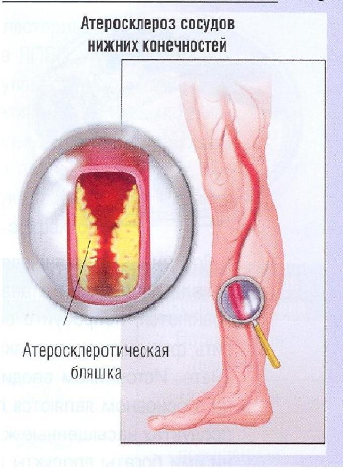 escuzanas ir hipertenzija pagyvenusių žmonių hipertenzijos gydymas