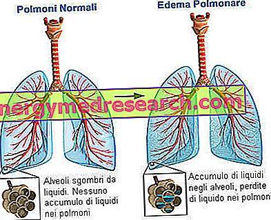 hipertenzija su plaučių edema